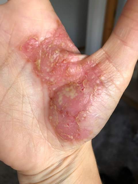 pictures of palmoplantar pustulosis