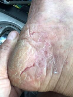photos of Palmoplantar pustulosis
