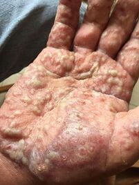 photos of palmoplantar psoriasis